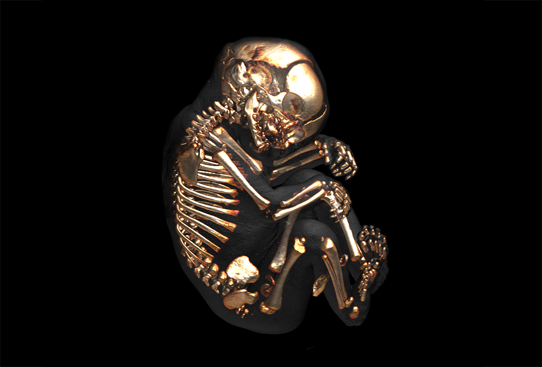 60 extra bones present in a baby's body than adult